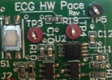 基于ADS1298的ECG硬件步速检测电路设计