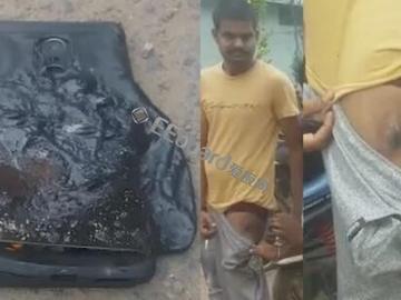 红米Note 4手机裤兜中爆炸 印度用户大腿受伤