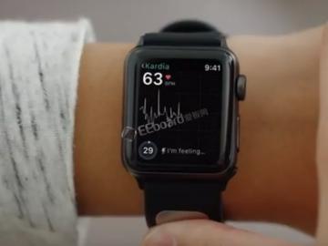 FDA批准由AliveCor制造的Apple Watch第一个医疗设备配件