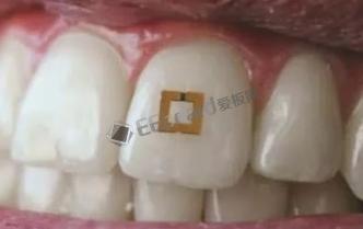 牙齿贴片传感器,可研究饮食摄入与健康之间的联系