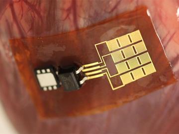 时刻监测体征信号,基于片式传感器电路设计方案